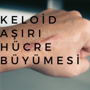 Keloid asiri hucre buyumesi 300x300 - Keloid Tedavisinde Radyoterapi