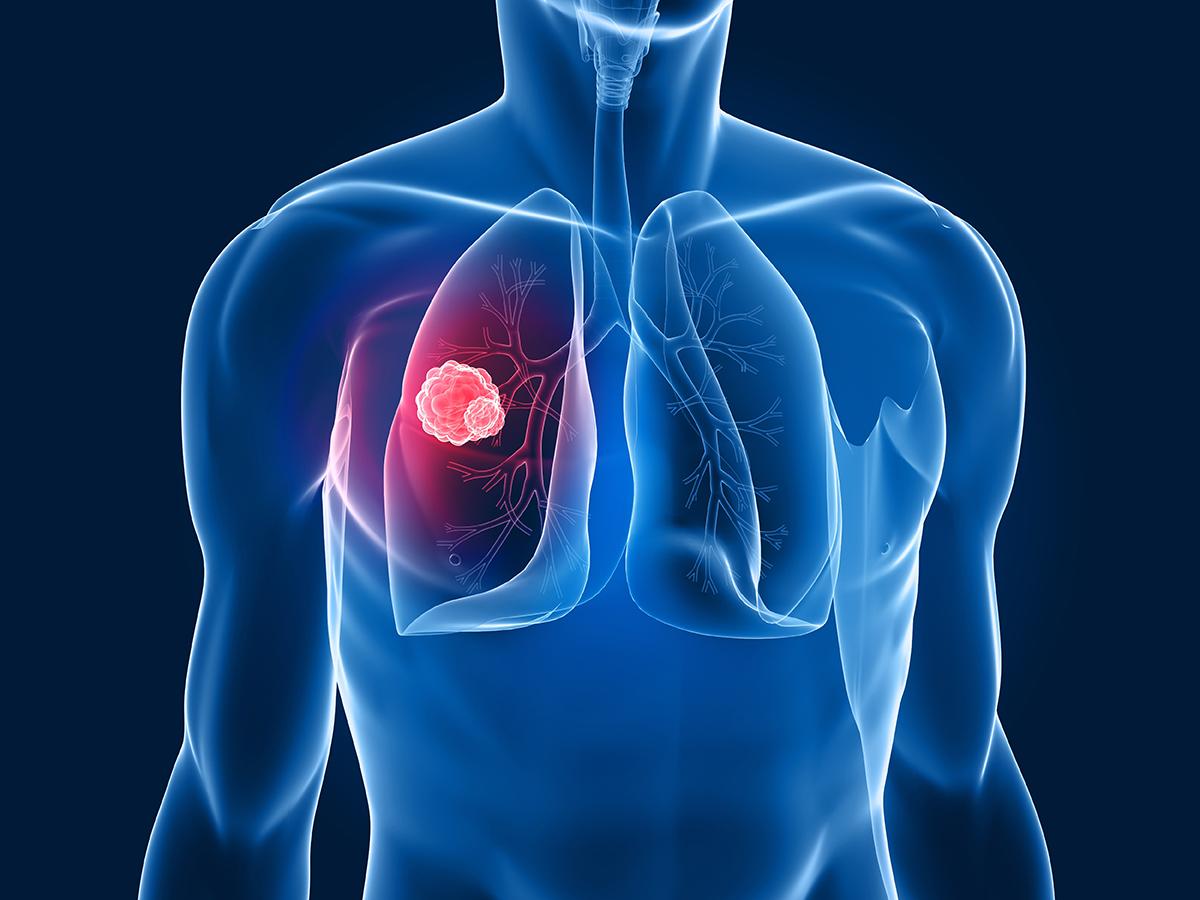 akciger - Akciğer Kanserinde Radyoterapi