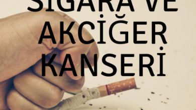 Sigara ve Akciğer Kanseri