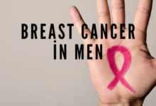 Photo of Breast Cancer in Men