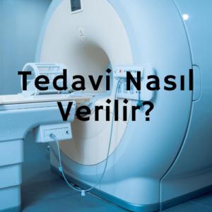 Tedavi Nasil Verilir  300x300 - Tedavi Seansı, Tedavi Nasıl Verilir?
