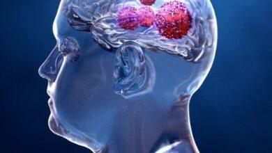 Bp Site 3 390x220 - Beyin Tümörü Nedir?