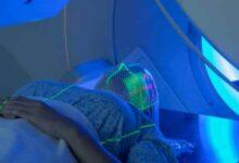 BP SITE 1 220x150 - Flash Radyoterapi Nedir?