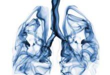 BP SITE 2 220x150 - Mezotelyoma Kanseri Nedir?